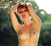 Freckled - Lynette - Watch4Beauty 7