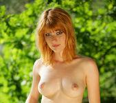 Freckled - Lynette - Watch4Beauty 9