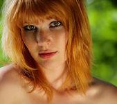 Freckled - Lynette - Watch4Beauty 10