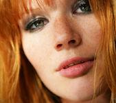 Freckled - Lynette - Watch4Beauty 13