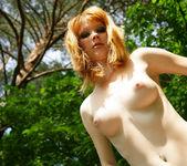 Freckled - Lynette - Watch4Beauty 14
